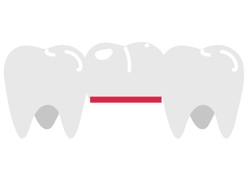 Traditional bridge, a dentist will secure the crowns to the teeth on either side of a gap, anchoring the pontic or pontics so that they fill the space. The result is a smile that is fully restored in terms of function and appearance.